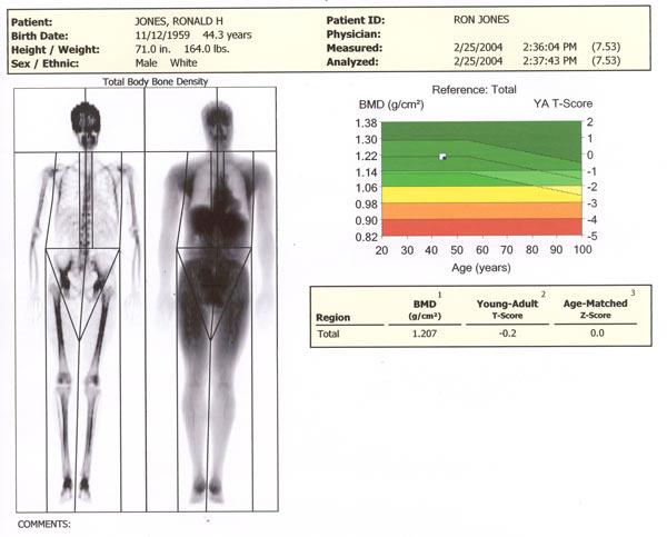 Body Fat Scan 55